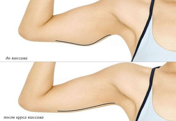 Массаж для похудения рук в домашних условиях популярные техники не требующие подготовки
