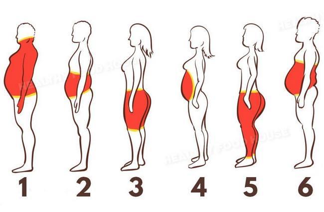 Особенности и лечение ожирения по женскому типу у мужчин