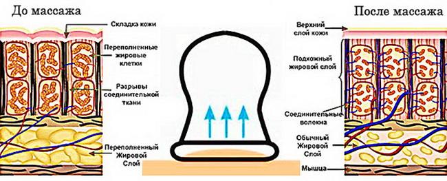 Баночный массаж от целлюлита эффективен но в домашних условиях опасен