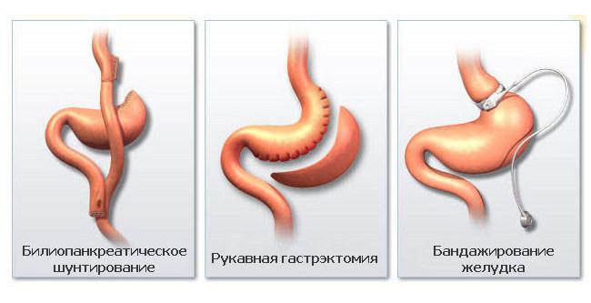 Шунтирование желудка в россии