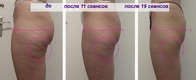 «Редко мало и в нужное место» или мезотерапия против целлюлита