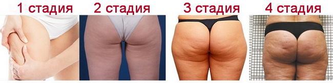 4 стадии целлюлита