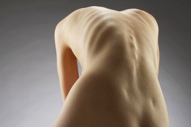 Анорексия что это за болезнь первые признаки виды и стадии лечение