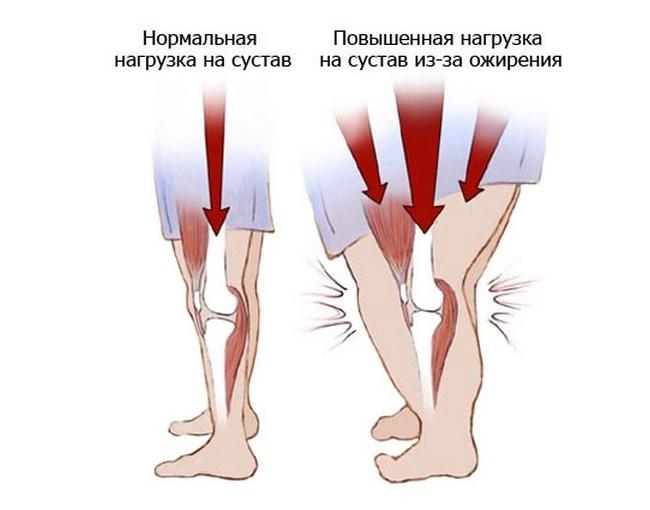 Вес 120 кг болят ноги