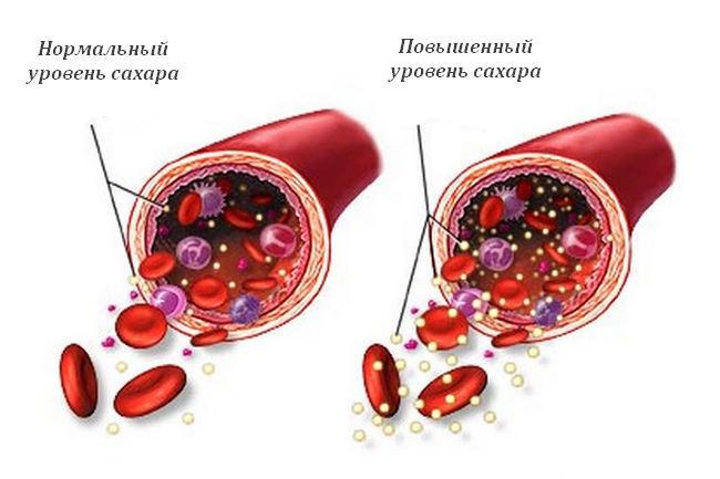 Повышенный сахар в крови: симптомы у женщин и причины отклонений от нормы