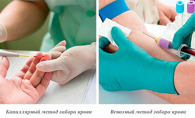 Предел нормы сахара в крови